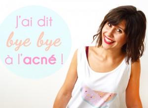 Il m'a fallu plus d'un an pour me débarrassée pour de bon de l'acné : découvrez mon histoire avec l'acné et les 6 habitudes anti-acné qui m'ont permis de retrouver une peau normale !